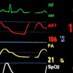 Improved HRV(Heart Rate Variability)