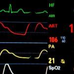 Quercetin Reduces Blood Pressure